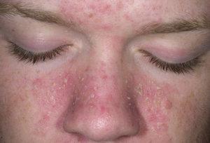 Чем и как можно лечить себорейный дерматит на лице