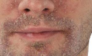 лечить себорейный дерматит на лице