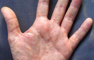 дисгидротического дерматита