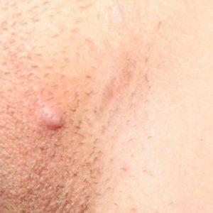 лечить высыпания на половых губах