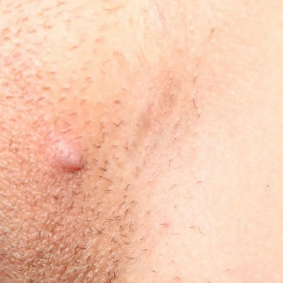 фото в интимном шишка месте появилась