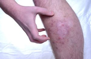 Как и чем лечить зудящий дерматит