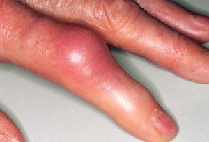 Какие заболевания провоцируют рост шишек на фалангах