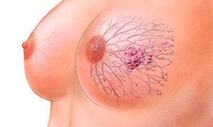 Как лечится папиллома на груди
