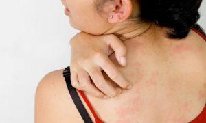 Как передается вирус герпеса
