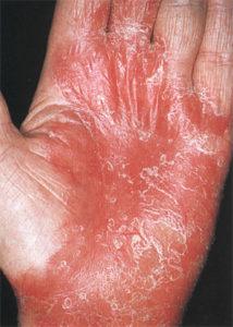 Как проводится диагностика псориаза