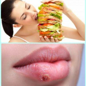 Какой должна быть диета при герпесе
