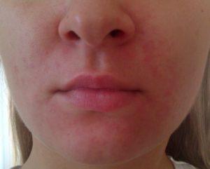 Основные симптомы и лечение красной сыпи на лице у ребенка