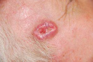 Симптомы и лечение базалиомы на лице