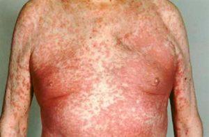 Симптомы и лечение эксфолиативного дерматита