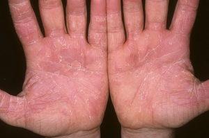 лечение эксфолиативного дерматита