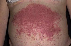Как лечить герпетиформный дерматит