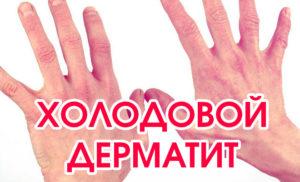 Симптомы и лечение холодового дерматита