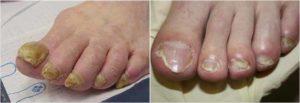 Симптомы и лечение микоза ногтей на ногах