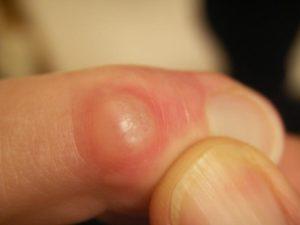 Симптомы и лечение наростов на пальцах ног