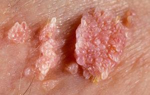 Симптомы и лечение остроконечной папилломы