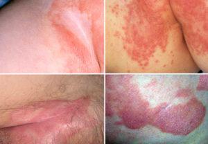 Симптомы и лечение пахового дерматита