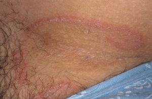 лечение пахового дерматита