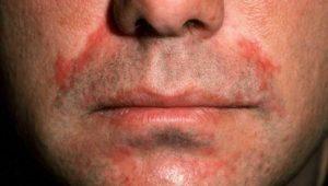 Симптомы и лечение перорального дерматита на лице