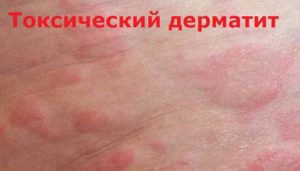 Лечение дерматита токсического