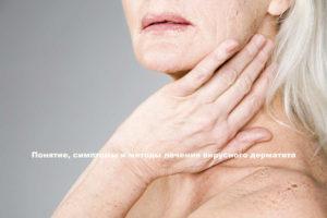 Симптомы и лечение вирусного дерматита у взрослых