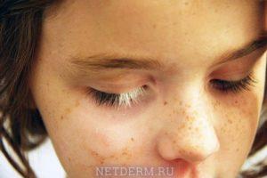 Симптомы и лечение витилиго у детей