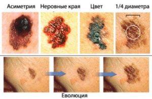 Симптомы и лечение злокачественной меланомы