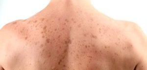 пигментные пятна на спине