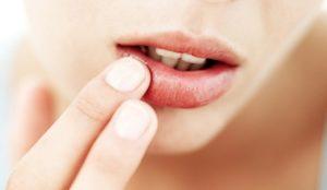 герпес часто появляется на губах