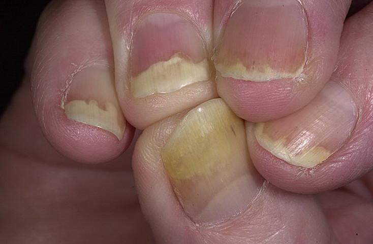 Чем лечить псориаз ногтя
