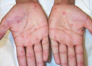 Лечение сыпи на ладошках