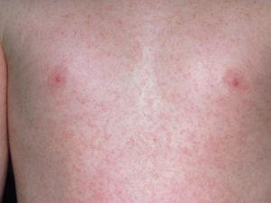 сыпь по всему телу у грудничка