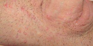 сыпь в паху и лечение
