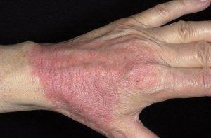 Хронический атопический дерматит
