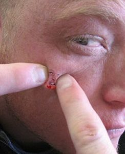 лечить фурункул на лице