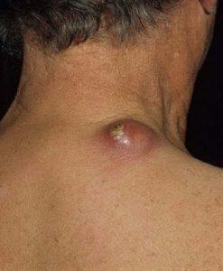 лечить абсцедирующий фурункул
