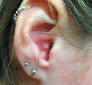 лечить фурункул наружного слухового прохода