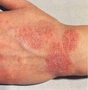 аллергическая экзема