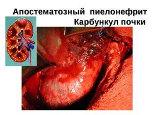 леченение карбункула почки