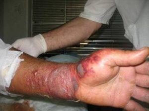лечение эмфизематозного карбункула