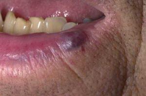 гемангиомы на губе у взрослых