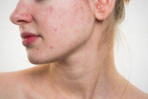 лечение лишая на лице